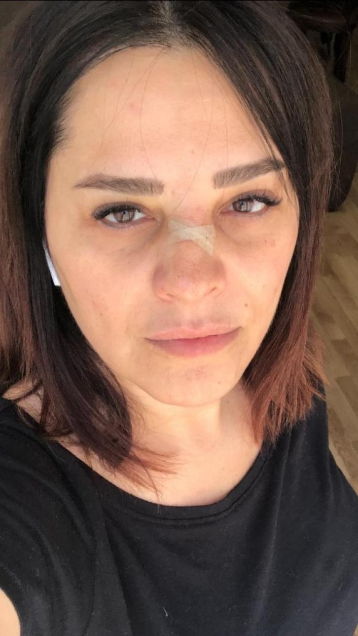 (Özel) Ünlü şarkıcı Reyhan Karaca´nın burnu kırıldı
